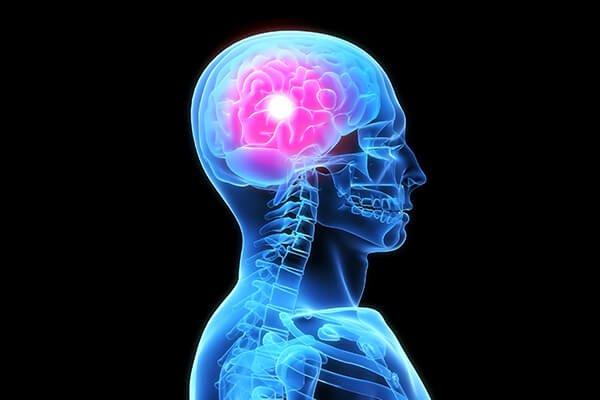 IMAGE - Headache