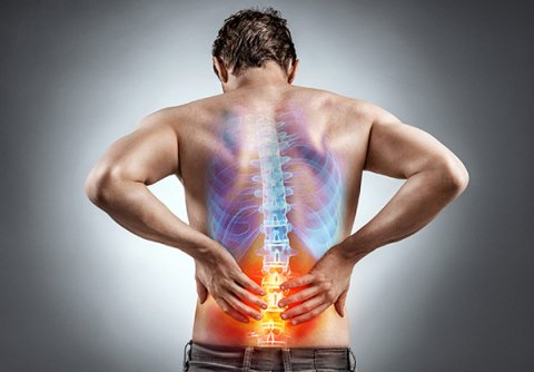 IMAGE - low back pain