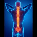 IMAGE - Spine xray