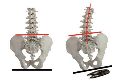 IMAGE - Spine sitting on wallet