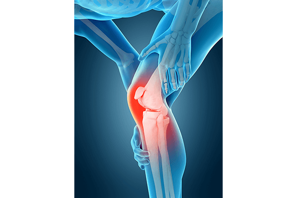 IMAGE - Knee pain