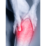 IMAGE - Muscle cramps