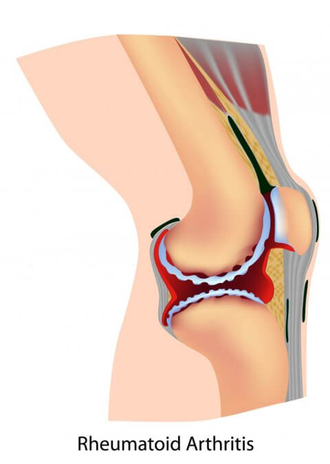 IMAGE - Diagram of knee with rheumatoid arthritis