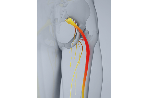 IMAGE - Diagram of Sciatic Nerve