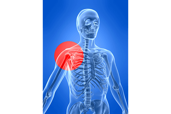IMAGE - Shoulder pain