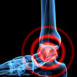 IMAGE - Ankle pain