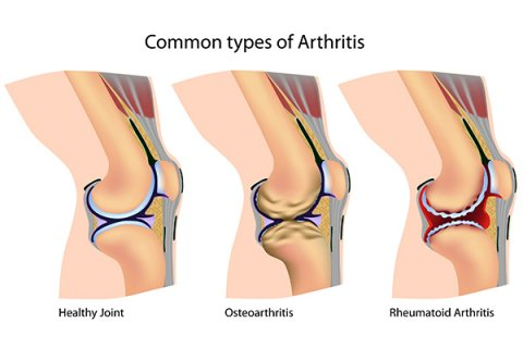 IMAGE - Diagram of common types of arthritis