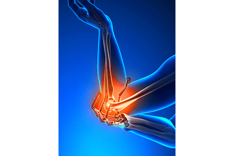 IMAGE - Elbow Pain