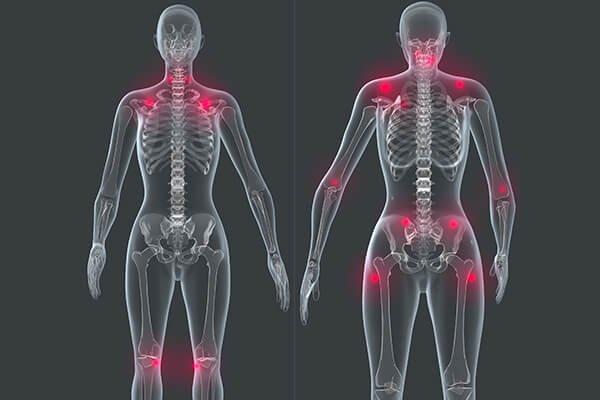 IMAGE - Points de fibromyalgie