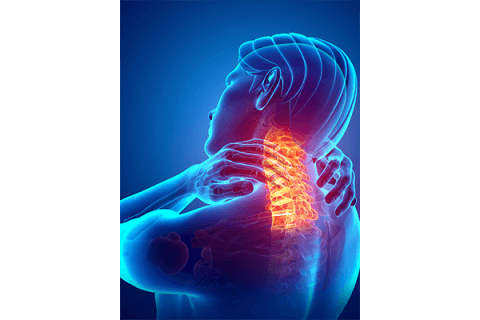 IMAGE - Neck pain