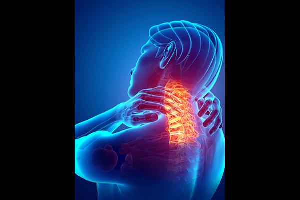 IMAGE - Neck pain
