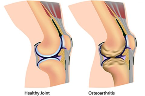 IMAGE - Healthy joint and joint with Osteoarthritis