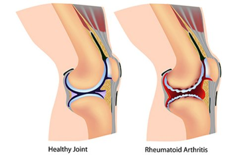 IMAGE - Healthy Joint & Joint with Rheumatoid Arthritis