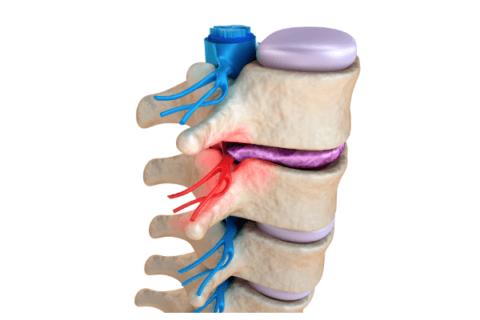 IMAGE: spinal vertebrae