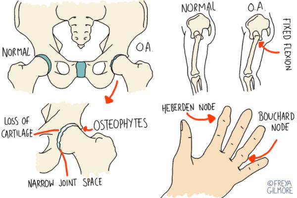 illustration of arthritis in joints